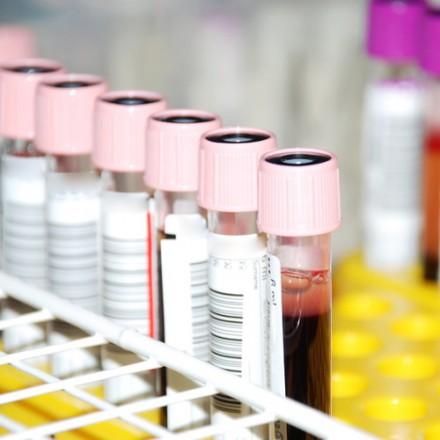 Blutentnahmen (Laboruntersuchungen)